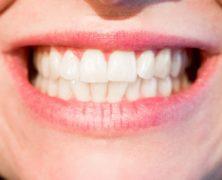 Bielenie zubov? Nespoliehajte sa na domáce recepty