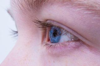 Nie je opuch ako opuch – dôvody a príznaky opuchu horného viečka